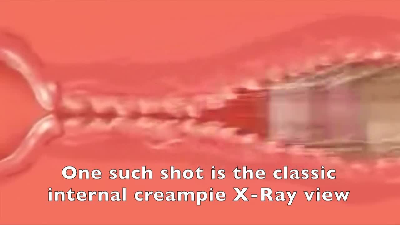 Monster creampie pussy close up hentai Cum Inside X Ray View Videos Xvix Eu